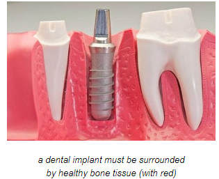 dental implant surrounded by healthy bone tissue