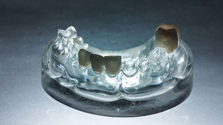 dental Impression-casting